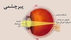 نکات کنکوری چشم